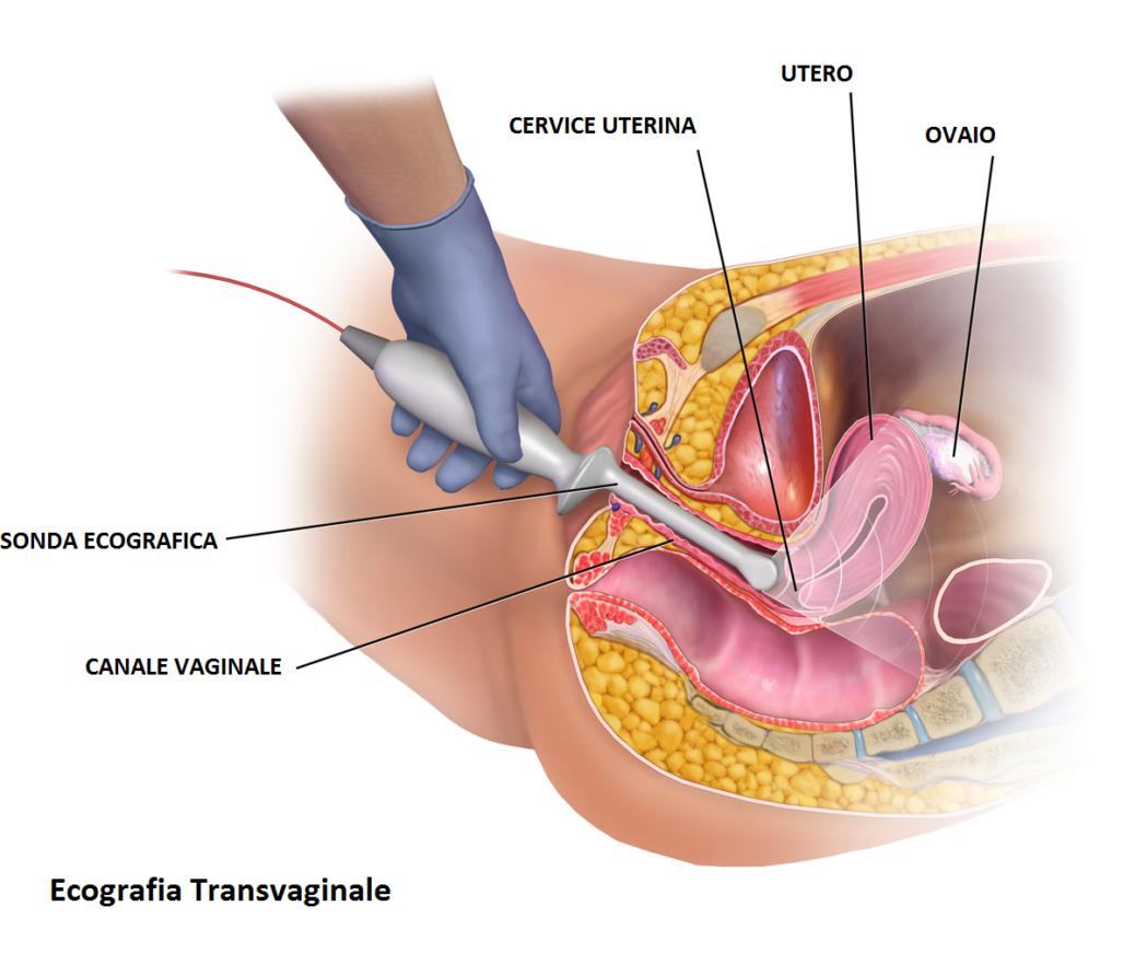 Ecografia-transvaginală Dr. Stela COJOCARU Medic specialist obstetrica-ginecologie